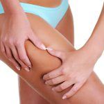 Liposuction Calgary